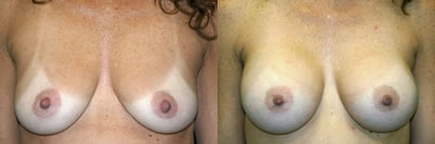 http://www.cosmetic-plastic-surgical-center.com/images/doctors/edween_gallery/photos/breastaug1.jpg
