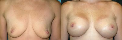 http://www.cosmetic-plastic-surgical-center.com/images/doctors/edween_gallery/photos/breastaug2.jpg