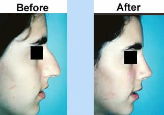 Rhinoplasty Surgery Low Cost  Nasal Surgery $2,790